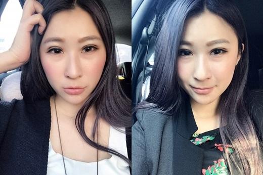 【台中割雙眼皮】單眼皮女孩想要擁有美美的韓式雙眼皮嗎??分享一間整形外科診所~雙眼皮超自然呐