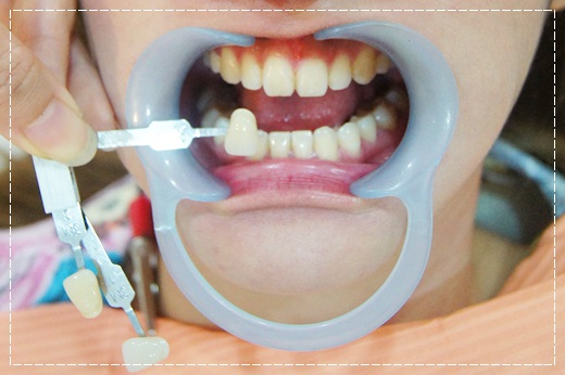高雄,牙齒美白,牙醫診所,牙醫,冷光美白,冷光牙齒美白,牙齒冷光美白,高雄冷光美白,高雄牙齒美白,冷光美白診所,冷光牙齒美白推薦,牙齒冷光美白分享,冷光牙齒美白介紹,牙齒冷光美白推薦,高雄牙齒冷光美白,牙齒冷光美白分享,高雄冷光牙齒美白,冷光牙齒美白推薦,冷光美白牙齒,牙齒冷光美白分享,高雄冷光美白價格,冷光牙齒美白推薦,高雄牙齒冷光美白