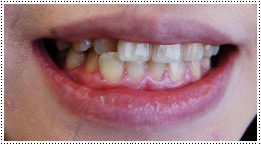 高雄,牙齒美白,牙醫診所,牙醫,冷光美白,冷光牙齒美白,牙齒冷光美白,高雄冷光美白,高雄牙齒美白,冷光美白診所,冷光牙齒美白推薦,牙齒冷光美白分享,冷光牙齒美白介紹,牙齒冷光美白推薦,高雄牙齒冷光美白,牙齒冷光美白分享,高雄冷光牙齒美白,冷光牙齒美白推薦,冷光美白牙齒,牙齒冷光美白分享,高雄美白牙齒,牙齒冷光美白分享,冷光牙齒美白推薦