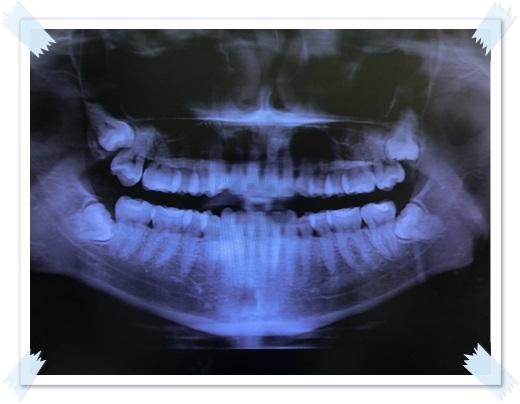 高雄,牙齒美白,牙醫診所,牙醫,冷光美白,冷光牙齒美白,牙齒冷光美白,高雄冷光美白,高雄牙齒美白,冷光美白診所,冷光牙齒美白推薦,牙齒冷光美白分享,冷光牙齒美白介紹,牙齒冷光美白推薦,高雄牙齒冷光美白,牙齒冷光美白分享,高雄冷光牙齒美白,冷光牙齒美白推薦,冷光美白牙齒,牙齒冷光美白分享,高雄牙齒美白,冷光美白經驗,牙齒冷光美白推薦