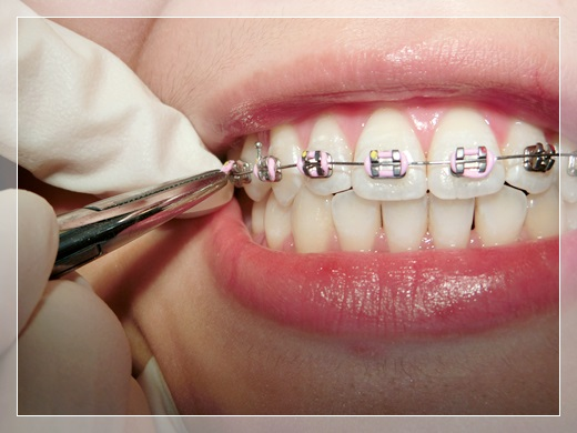 高雄,牙齒矯正,牙醫診所,牙科矯正,戴牙套,裝牙套,高雄牙齒矯正,牙科矯正費用,高雄裝牙套,牙齒矯正權威,牙齒矯正專科,高雄牙齒矯正診所推薦,高雄裝牙套診所推薦,高雄左營區牙醫矯正,牙醫診所,高雄牙醫權威,高雄牙科醫生,高雄牙齒矯正分期,高雄牙齒矯正牙醫師,高雄牙齒矯正推薦