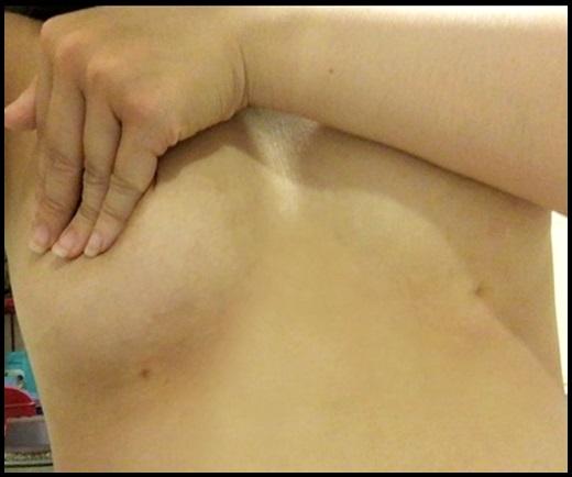 高雄抽脂,高雄抽脂推薦,高雄抽脂價位,高雄抽脂按摩,高雄抽脂費用,高雄抽脂價格,高雄眼皮抽脂,高雄抽脂手術,高雄手臂抽脂,高雄市抽脂,高雄水刀抽脂,高雄自體抽脂推薦,高雄自體隆乳,高雄自體脂肪,自體脂肪高雄,高雄自體脂肪,高雄自體脂肪隆乳,高雄自體脂肪隆乳價格,高雄自體脂肪隆乳評價,高雄自體脂肪隆乳介紹,高雄自體脂肪隆乳分享,高雄自體脂肪隆乳價錢,高雄自體脂肪隆乳比較,高雄自體脂肪隆乳評論,高雄自體脂肪抽脂推薦,高雄自體脂肪抽脂價格,高雄自體脂肪抽脂評價,高雄自體脂肪抽脂介紹,高雄自體脂肪抽脂分享,高雄自體脂肪抽脂價錢,高雄自體脂肪抽脂比較,高雄自體脂肪抽脂評論,高雄自體脂肪隆乳,高雄自體脂肪豐頰,高雄 自體脂肪隆乳,高雄自體脂肪隆乳費用,高雄自體脂肪移植費用,高雄自體脂肪隆乳 推薦,自體脂肪移植高雄,高雄自體脂肪移植,高雄自體脂肪隆乳,手臂抽脂經驗分享,高雄自體脂肪豐胸,自體脂肪隆乳價錢
