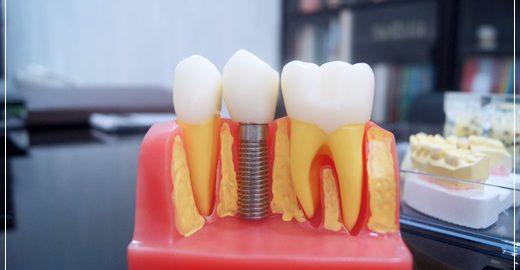 植牙推薦台中,推薦台中植牙醫師,中部植牙價格,植牙價格合理,台中植牙醫師,台中人工植牙,植牙分期價格,台中植牙推薦,台中,植牙,牙醫診所,牙醫,台中植牙,台中牙醫,台中植牙價格,台中牙科推薦,台中推薦牙醫,台中北屯牙醫推薦,北屯牙醫推薦,植牙分期,牙醫權威,台中牙醫師推薦,牙科醫生推薦,台中植牙價格查詢,台中植牙分期,台中牙醫權威,台中牙科醫生