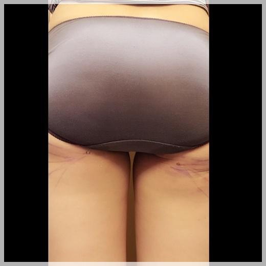 高雄抽脂,高雄抽脂推薦,高雄抽脂價位,高雄抽脂按摩,高雄抽脂費用,高雄抽脂價格,高雄眼皮抽脂,高雄抽脂手術,高雄手臂抽脂,高雄市抽脂,高雄水刀抽脂,高雄自體抽脂推薦,高雄自體隆乳,高雄自體脂肪,自體脂肪高雄,高雄自體脂肪,高雄自體脂肪隆乳,高雄自體脂肪隆乳價格,高雄自體脂肪隆乳評價,高雄自體脂肪隆乳介紹,高雄自體脂肪隆乳分享,高雄自體脂肪隆乳價錢,高雄自體脂肪隆乳比較,高雄自體脂肪隆乳評論,高雄自體脂肪抽脂推薦,高雄自體脂肪抽脂價格,高雄自體脂肪抽脂評價,高雄自體脂肪抽脂介紹,高雄自體脂肪抽脂分享,高雄自體脂肪抽脂價錢,高雄自體脂肪抽脂比較,高雄自體脂肪抽脂評論,高雄自體脂肪隆乳,高雄自體脂肪豐頰,高雄 自體脂肪隆乳,高雄自體脂肪隆乳費用,高雄自體脂肪移植費用,高雄自體脂肪隆乳 推薦,自體脂肪移植高雄,高雄自體脂肪移植,高雄自體脂肪移植,高雄大腿抽脂,自體脂肪豐胸