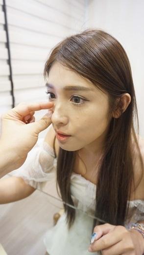 [台中醫美]微整形+輪廓+瘦小臉+線條+皺下巴+玻尿酸+蘋果肌+立即見效+整形外科醫師