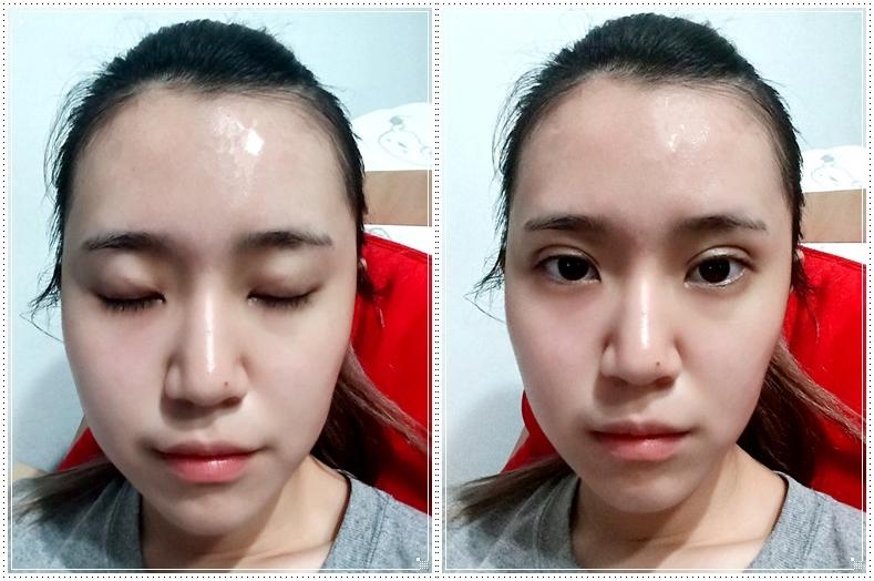 台北+名醫+專業+診所+時尚+自然+桃花眼+無痕+推薦割縫雙眼皮!