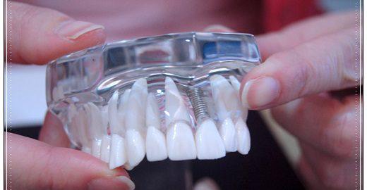 台中植牙推薦,台中植牙價格,植牙推薦,台中牙醫植牙,台中植牙價格分期,台中植牙醫師,台中,植牙