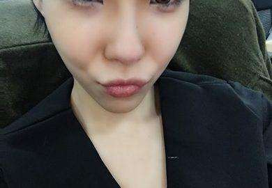 台北縫雙眼皮